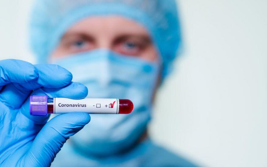cepiva